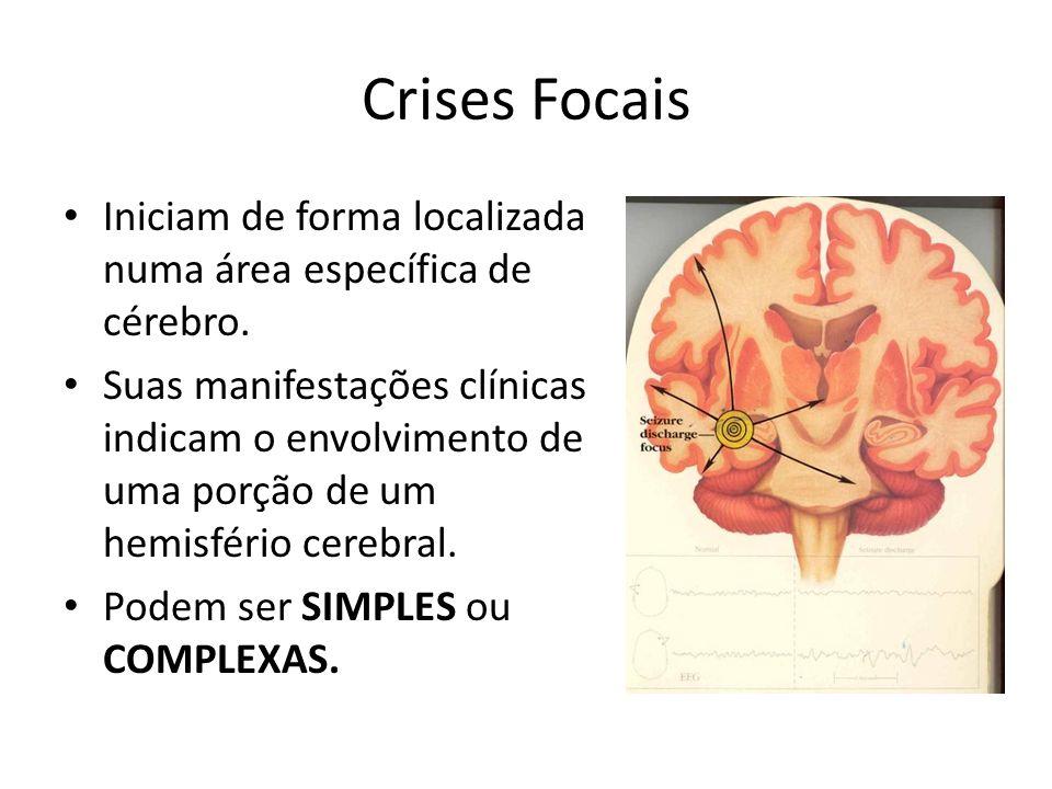 Crises Focais Iniciam de forma localizada numa área específica de cérebro. Suas manifestações clínicas indicam o envolvimento de uma porção de um hemi