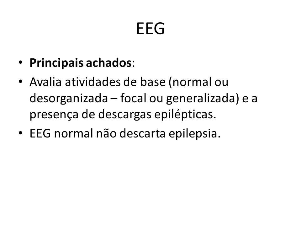 EEG Principais achados: Avalia atividades de base (normal ou desorganizada – focal ou generalizada) e a presença de descargas epilépticas. EEG normal