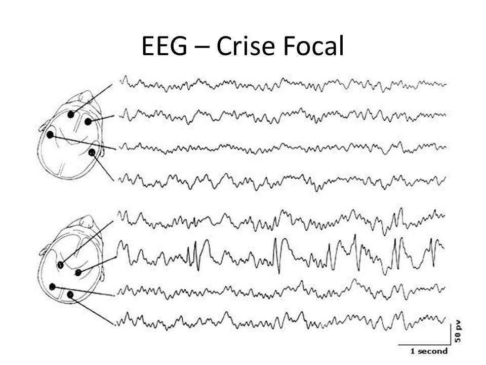 EEG – Crise Focal