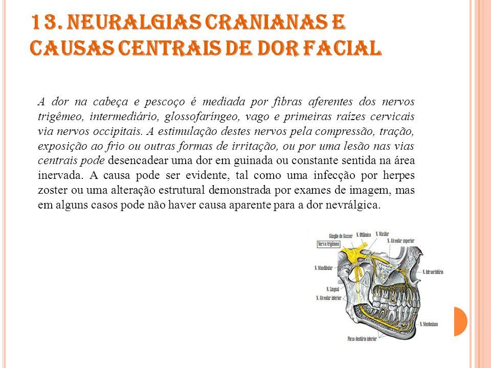 14.O UTRAS CEFALÉIAS, NEURALGIAS CRANIANAS E DOR FACIAL PRIMÁRIA OU CENTRAL Cefaléias que não são enquadradas em nenhum outro critério diagnóstico de cefaléia.