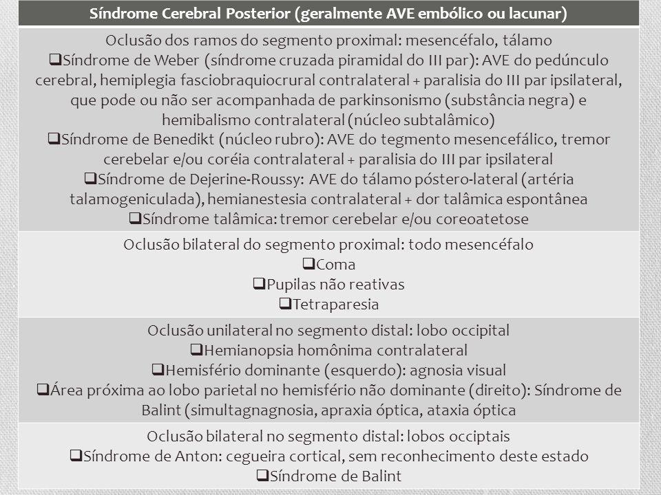 Síndrome Cerebral Posterior (geralmente AVE embólico ou lacunar) Oclusão dos ramos do segmento proximal: mesencéfalo, tálamo Síndrome de Weber (síndro