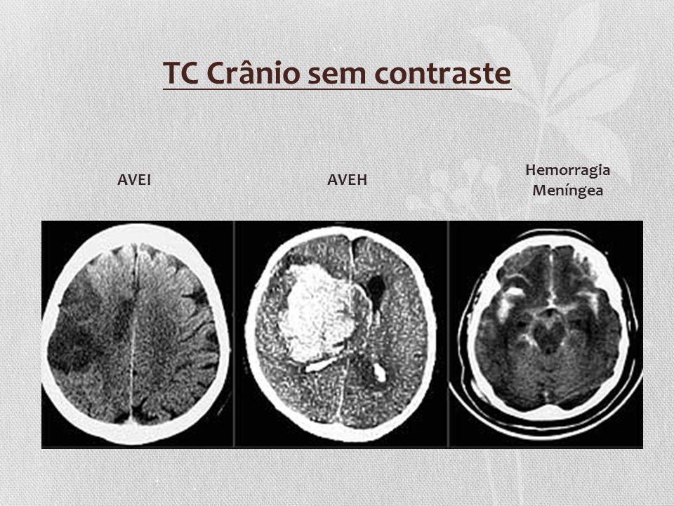 TC Crânio sem contraste AVEIAVEH Hemorragia Meníngea