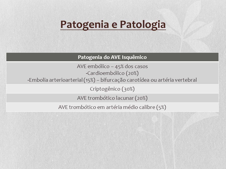 Patogenia e Patologia Patogenia do AVE Isquêmico AVE embólico – 45% dos casos -Cardioembólico (20%) -Embolia arterioarterial (15%) – bifurcação carotí