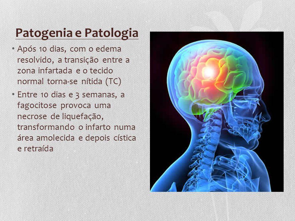 Patogenia e Patologia Após 10 dias, com o edema resolvido, a transição entre a zona infartada e o tecido normal torna-se nítida (TC) Entre 10 dias e 3