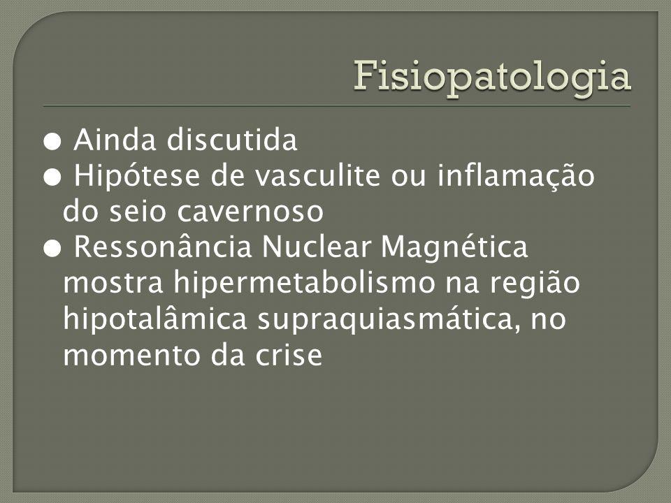 Ainda discutida Hipótese de vasculite ou inflamação do seio cavernoso Ressonância Nuclear Magnética mostra hipermetabolismo na região hipotalâmica sup