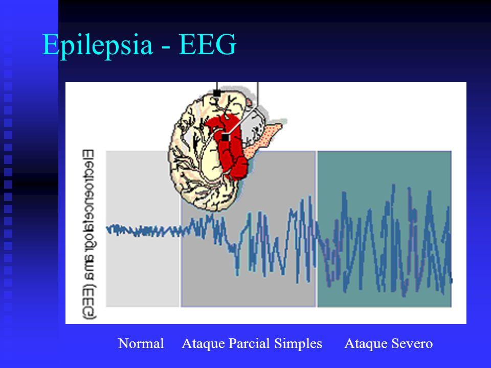 Epilepsia - EEG Normal Ataque Parcial Simples Ataque Severo