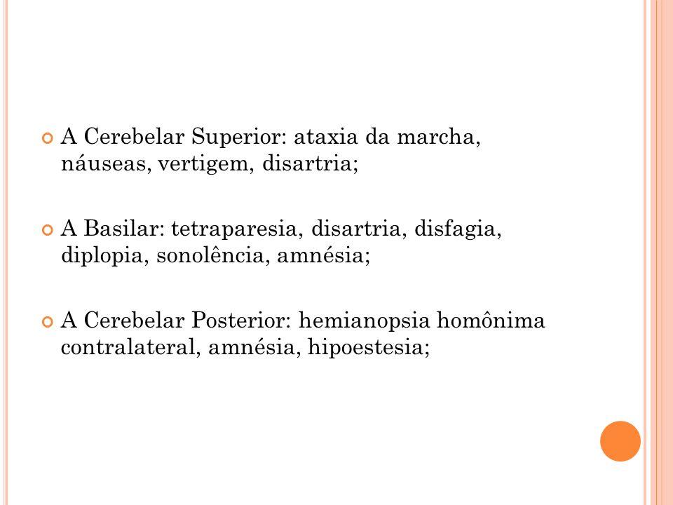 A Cerebelar Superior: ataxia da marcha, náuseas, vertigem, disartria; A Basilar: tetraparesia, disartria, disfagia, diplopia, sonolência, amnésia; A C