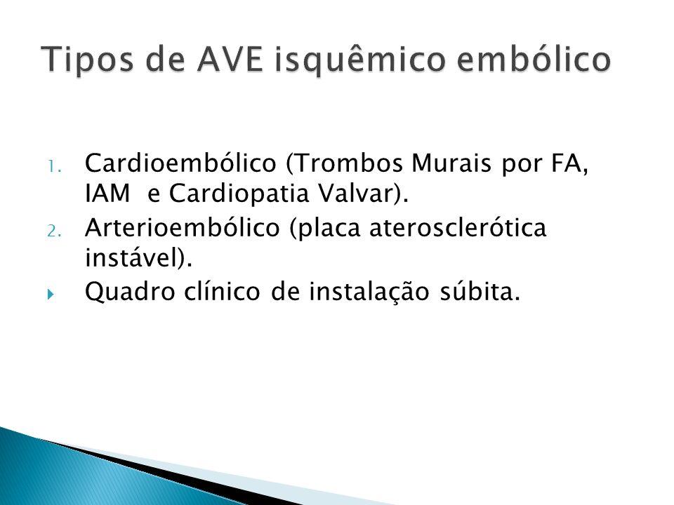 1. Cardioembólico (Trombos Murais por FA, IAM e Cardiopatia Valvar). 2. Arterioembólico (placa aterosclerótica instável). Quadro clínico de instalação