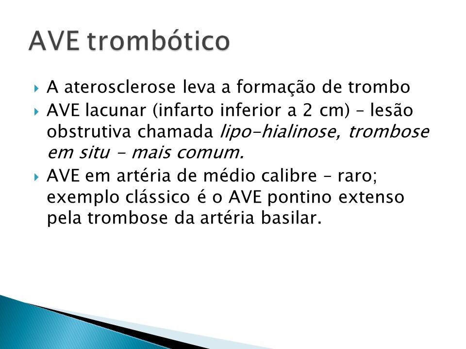 A aterosclerose leva a formação de trombo AVE lacunar (infarto inferior a 2 cm) – lesão obstrutiva chamada lipo-hialinose, trombose em situ - mais com