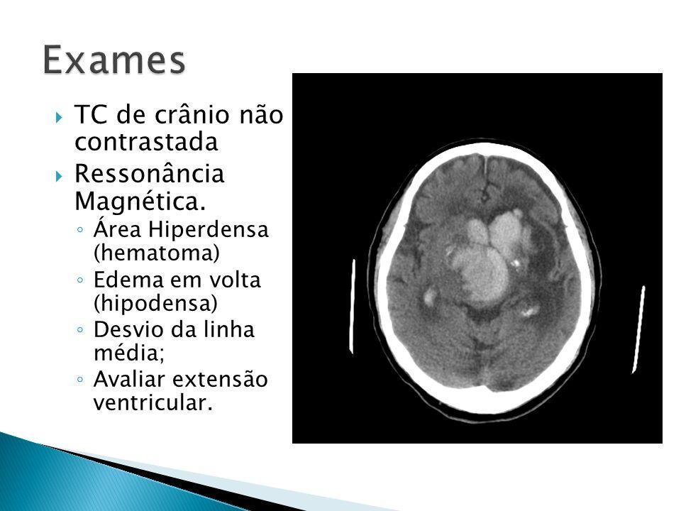 TC de crânio não contrastada Ressonância Magnética. Área Hiperdensa (hematoma) Edema em volta (hipodensa) Desvio da linha média; Avaliar extensão vent