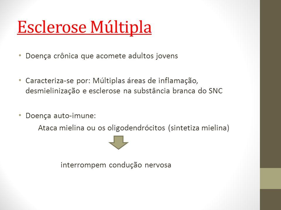 Esclerose Múltipla Doença crônica que acomete adultos jovens Caracteriza-se por: Múltiplas áreas de inflamação, desmielinização e esclerose na substân