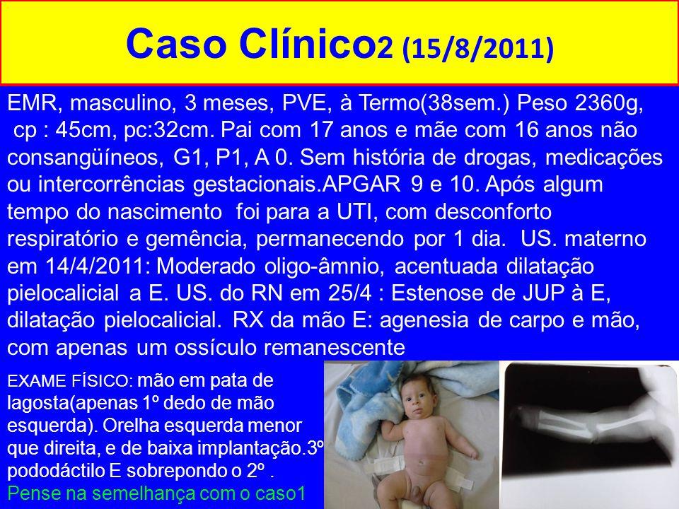 Caso Clínico 2 (15/8/2011) EMR, masculino, 3 meses, PVE, à Termo(38sem.) Peso 2360g, cp : 45cm, pc:32cm. Pai com 17 anos e mãe com 16 anos não consang