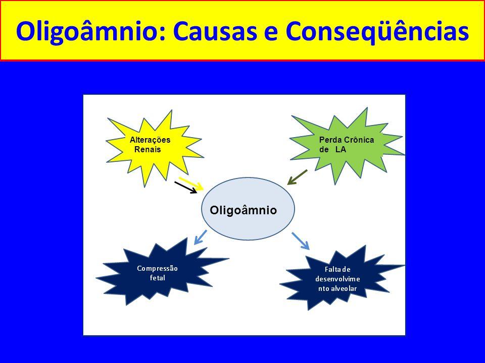 Oligoâmnio: Causas e conseqüências CAUSAS CONSEQUÊNCIAS