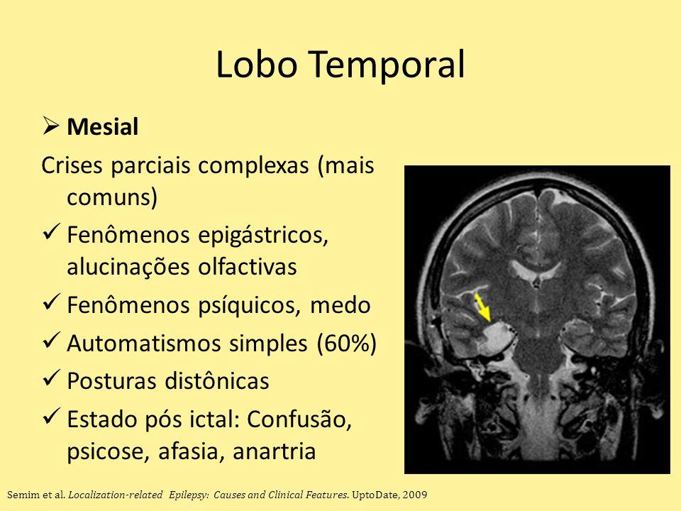 Lobo Temporal Mesial Crises parciais complexas (mais comuns) Fenômenos epigástricos, alucinações olfactivas Fenômenos psíquicos, medo Automatismos simples (60%) Posturas distônicas Estado pós ictal: Confusão, psicose, afasia, anartria Semim et al.