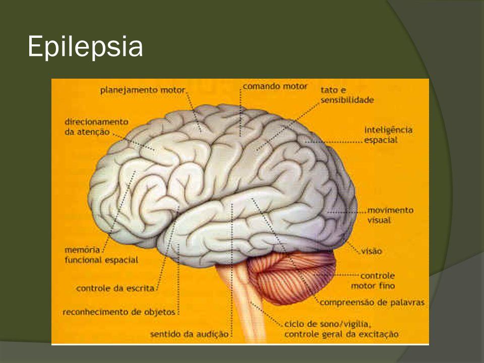 Epilepsia Crise de Lobo Temporal 1.Aura 2. Parada e fixação do olhar 3.