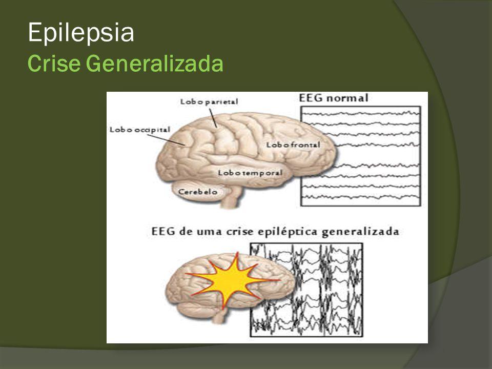 Epilepsia Generalizadas Tônica Clônica Tônico clônica Atônica Mioclônica Ausência