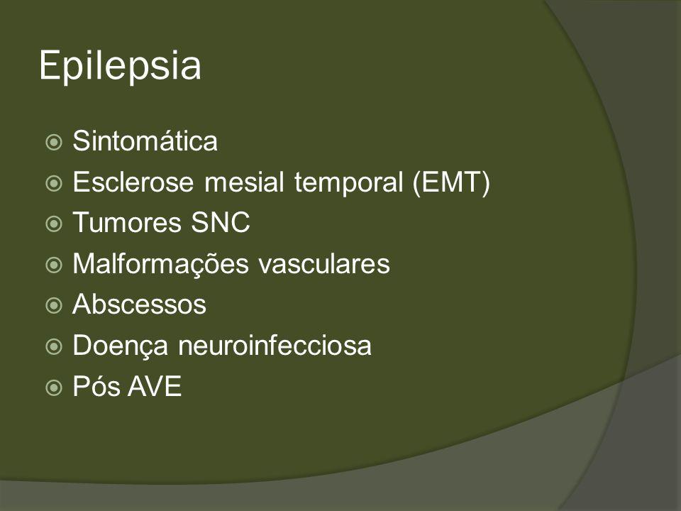 Epilepsia Esclerose Mesial Temporal Principal causa de epilepsia no Adulto Alteração da região mesial temporal Hipocampo vai atrofiando e esclerosando ( perda de memória) Descarga anormal que gera crise parcial simples e evolui pra complexa