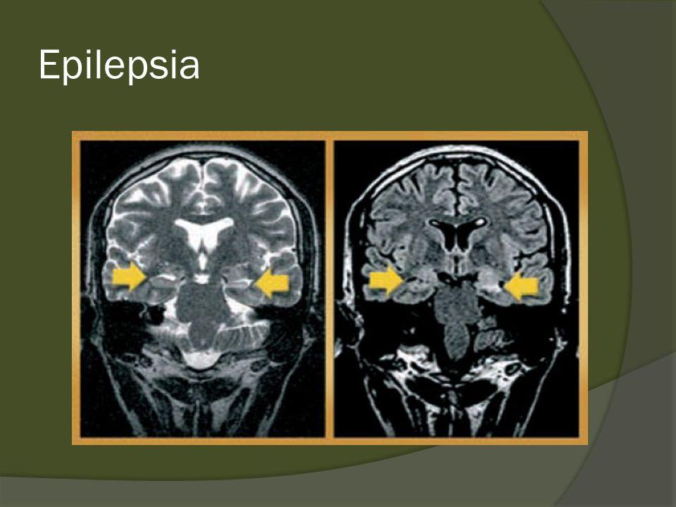 Epilepsia Generalizada Sintomática Síndrome de West: Inicio de 3 a 12 meses Espasmos em salvas, involução do DNPM Síndrome de Lennox-Gastaut Compreende várias tipos de crise tônica