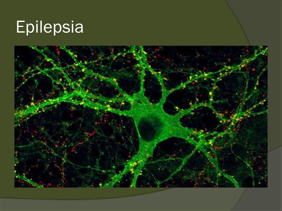 Epilepsia Crises Hiperatividade dos neurônios e circuitos cerebrais capaz de gerar descargas elétricas sincrônicas anormais Os sintomas paroxísticos podem ser diferentes dependendo da área do cérebro onde se origina a crise
