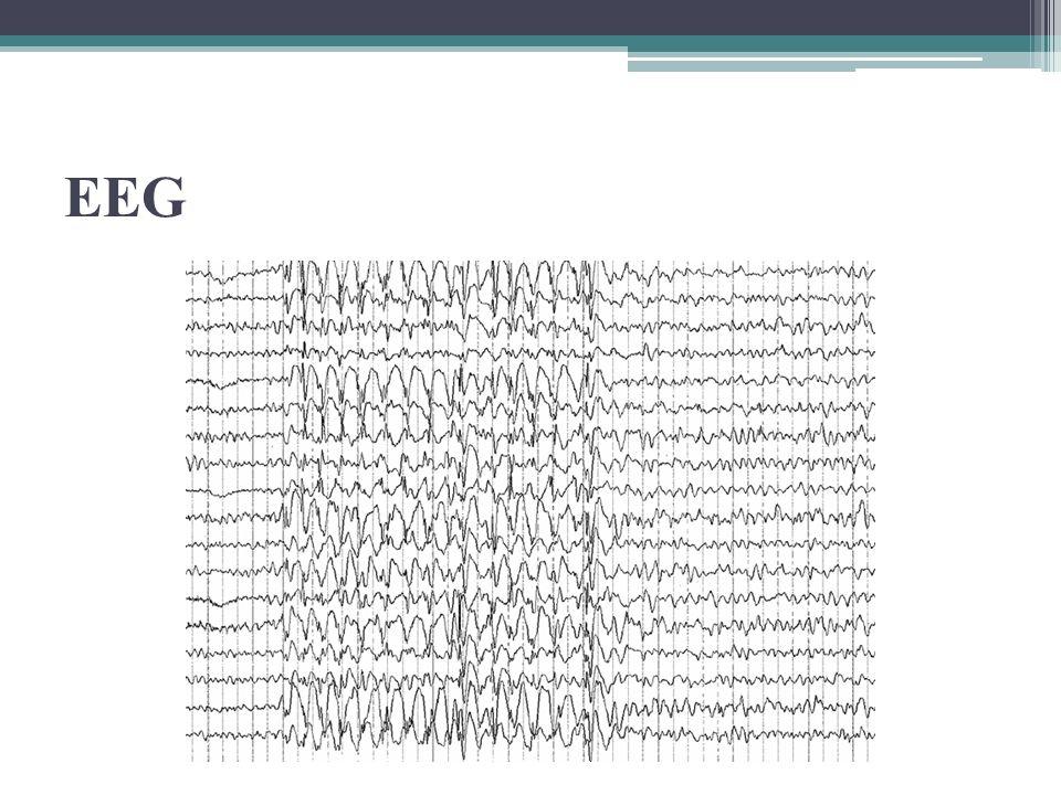 EEG- Epilepsia Focal