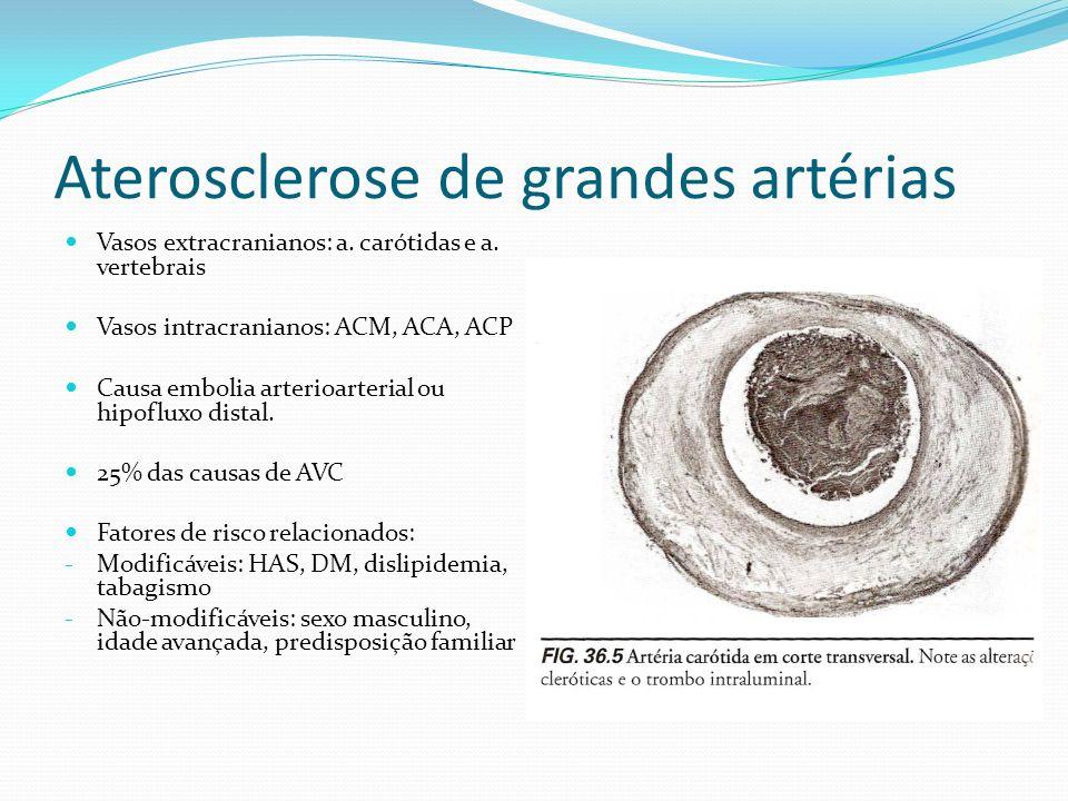 Aterosclerose de grandes artérias Vasos extracranianos: a. carótidas e a. vertebrais Vasos intracranianos: ACM, ACA, ACP Causa embolia arterioarterial