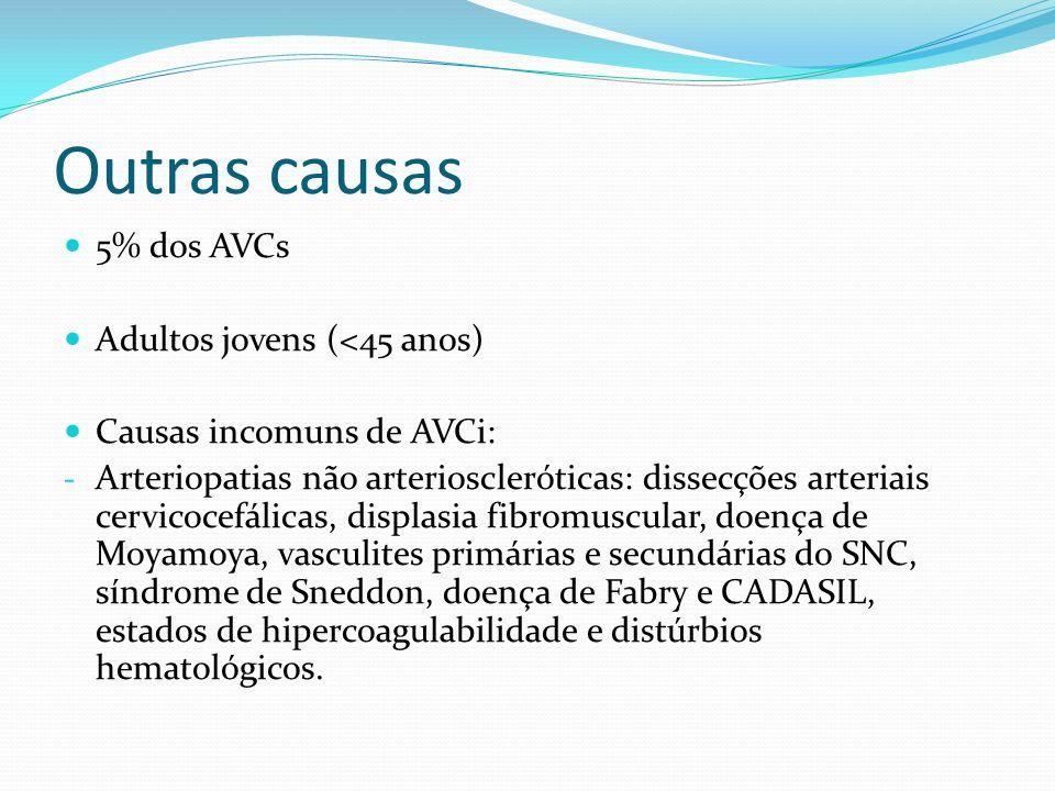 Outras causas 5% dos AVCs Adultos jovens (<45 anos) Causas incomuns de AVCi: - Arteriopatias não arterioscleróticas: dissecções arteriais cervicocefál