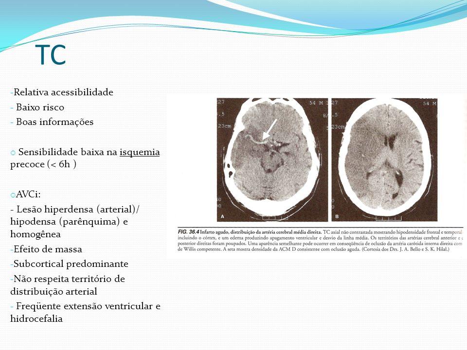 TC - Relativa acessibilidade - Baixo risco - Boas informações o Sensibilidade baixa na isquemia precoce (< 6h ) o AVCi: - Lesão hiperdensa (arterial)/