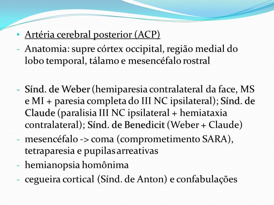Artéria cerebral posterior (ACP) - Anatomia: supre córtex occipital, região medial do lobo temporal, tálamo e mesencéfalo rostral - Sínd. de Weber Sín
