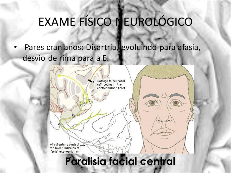 EXAME FÍSICO NEUROLÓGICO Pares cranianos: Disartria, evoluindo para afasia, desvio de rima para a E. Paralisia facial central