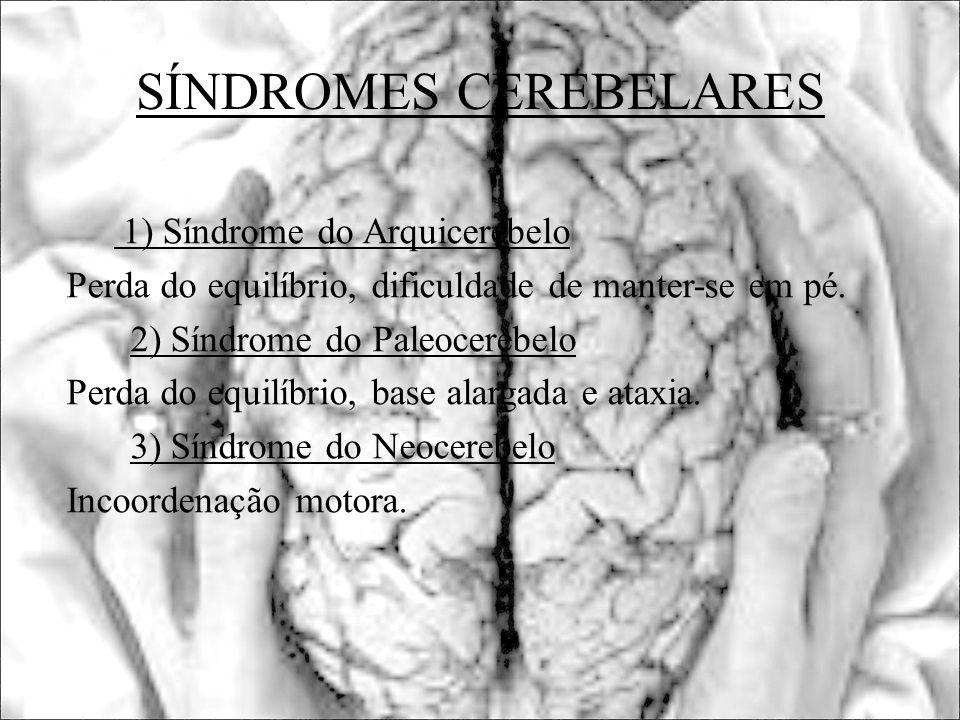 SÍNDROMES CEREBELARES 1) Síndrome do Arquicerebelo Perda do equilíbrio, dificuldade de manter-se em pé. 2) Síndrome do Paleocerebelo Perda do equilíbr