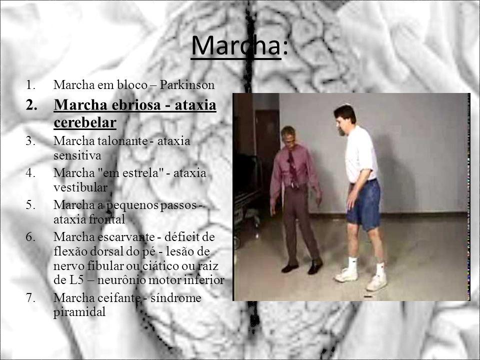 Marcha: 1.Marcha em bloco – Parkinson 2.Marcha ebriosa - ataxia cerebelar 3.Marcha talonante - ataxia sensitiva 4.Marcha
