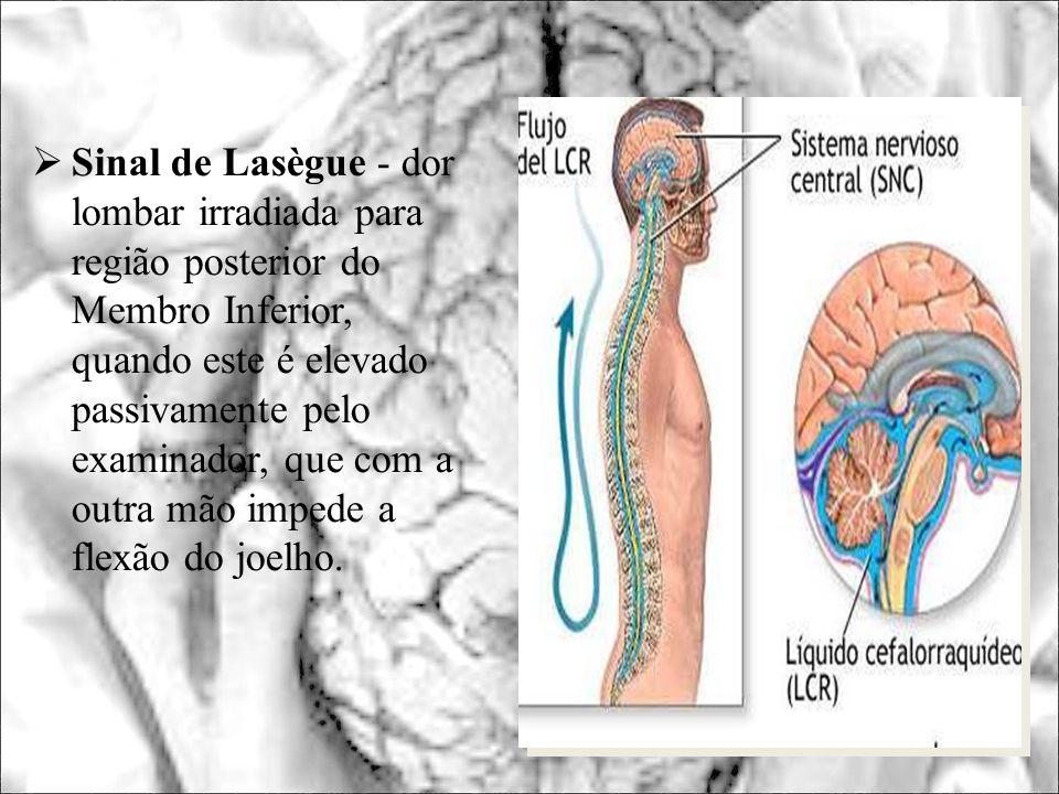 Sinal de Lasègue - dor lombar irradiada para região posterior do Membro Inferior, quando este é elevado passivamente pelo examinador, que com a outra