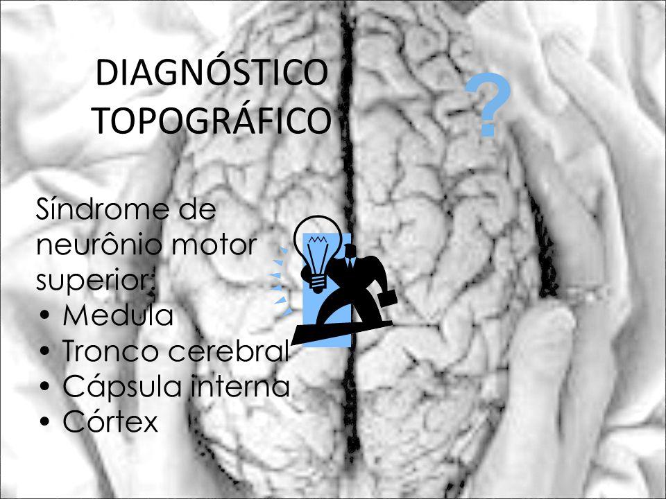 DIAGNÓSTICO TOPOGRÁFICO Síndrome de neurônio motor superior: Medula Tronco cerebral Cápsula interna Córtex ?