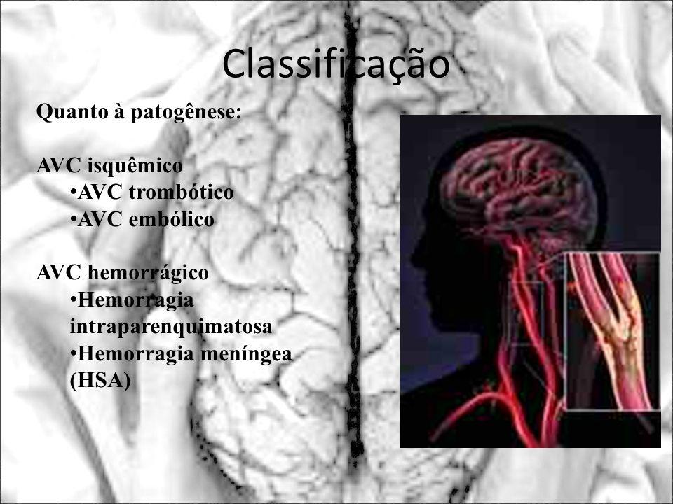 Classificação Quanto à patogênese: AVC isquêmico AVC trombótico AVC embólico AVC hemorrágico Hemorragia intraparenquimatosa Hemorragia meníngea (HSA)
