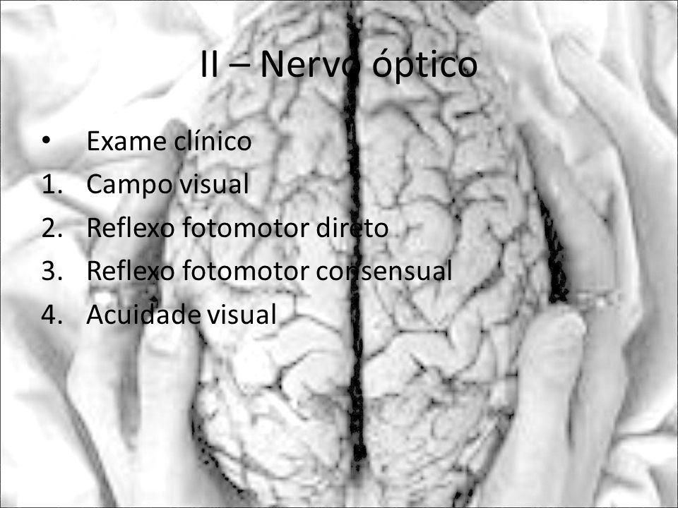 Exame clínico 1.Campo visual 2.Reflexo fotomotor direto 3.Reflexo fotomotor consensual 4.Acuidade visual