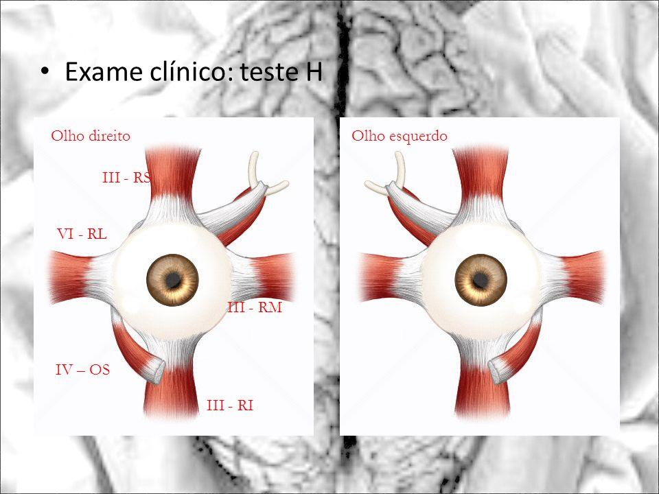 Exame clínico: teste H Olho esquerdo VI - RL III - RI III - RS III - RM IV – OS Olho direito