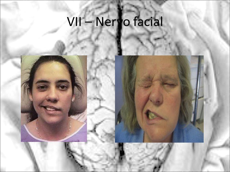 VII – Nervo facial
