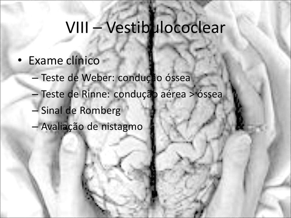 VIII – Vestibulococlear Exame clínico – Teste de Weber: condução óssea – Teste de Rinne: condução aérea > óssea – Sinal de Romberg – Avaliação de nist