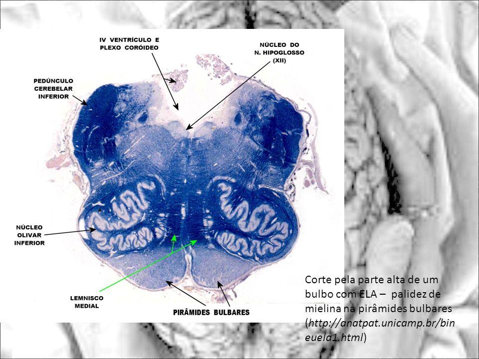 Corte pela parte alta de um bulbo com ELA – palidez de mielina na pirâmides bulbares (http://anatpat.unicamp.br/bin euela1.html)