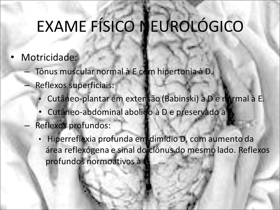 EXAME FÍSICO NEUROLÓGICO Motricidade: – Tônus muscular normal à E com hipertonia à D. – Reflexos superficiais: Cutâneo-plantar em extensão (Babinski)