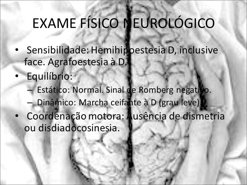 EXAME FÍSICO NEUROLÓGICO Sensibilidade: Hemihipoestesia D, inclusive face. Agrafoestesia à D. Equilíbrio: – Estático: Normal. Sinal de Romberg negativ