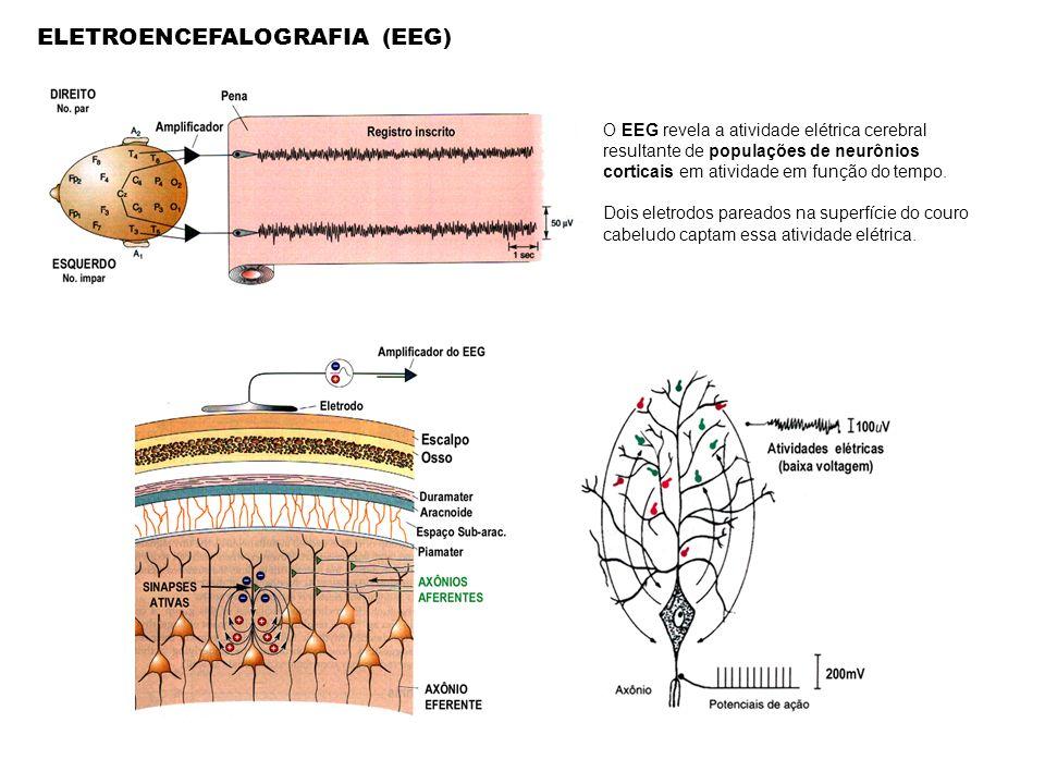 ELETROENCEFALOGRAFIA (EEG) O EEG revela a atividade elétrica cerebral resultante de populações de neurônios corticais em atividade em função do tempo.