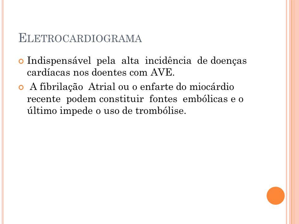 E LETROCARDIOGRAMA Indispensável pela alta incidência de doenças cardíacas nos doentes com AVE. A fibrilação Atrial ou o enfarte do miocárdio recente