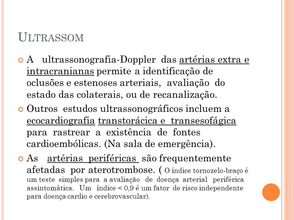 U LTRASSOM A ultrassonografia-Doppler das artérias extra e intracranianas permite a identificação de oclusões e estenoses arteriais, avaliação do esta