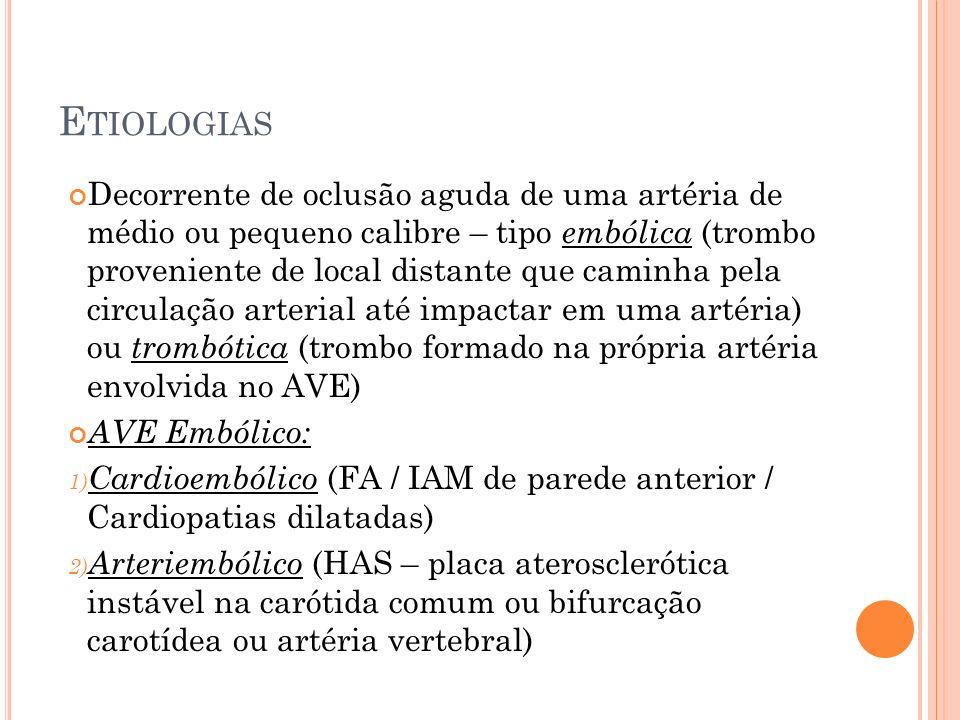 E TIOLOGIAS Decorrente de oclusão aguda de uma artéria de médio ou pequeno calibre – tipo embólica (trombo proveniente de local distante que caminha p