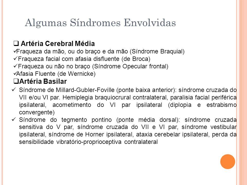 Algumas Síndromes Envolvidas Artéria Cerebral Média Fraqueza da mão, ou do braço e da mão (Síndrome Braquial) Fraqueza facial com afasia disfluente (d