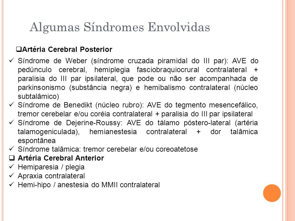 Algumas Síndromes Envolvidas Artéria Cerebral Posterior Síndrome de Weber (síndrome cruzada piramidal do III par): AVE do pedúnculo cerebral, hemipleg