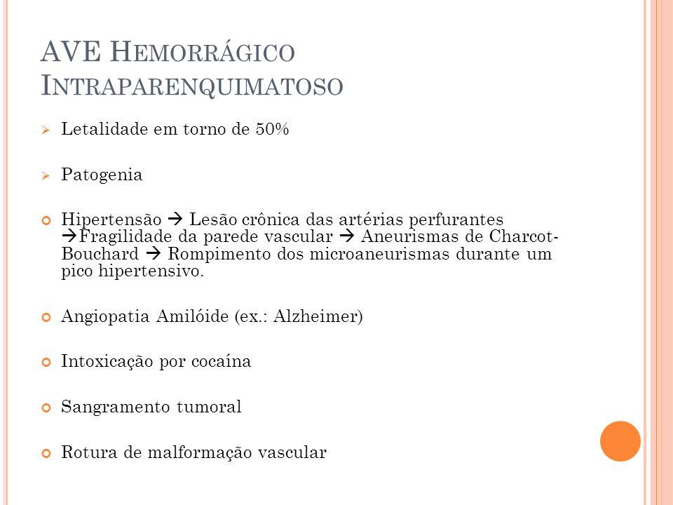 AVE H EMORRÁGICO I NTRAPARENQUIMATOSO Letalidade em torno de 50% Patogenia Hipertensão Lesão crônica das artérias perfurantes Fragilidade da parede va