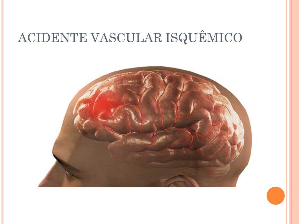 Algumas Síndromes Envolvidas Artéria Vertebral Síndrome de Wallemberg: síndrome sensitiva cruzada do V par (hemi/hipo anestesia contralateral + hemi/hipo anestesia facial ipsilateral, disfagia + disfonias graves (síndrome bulbar), pelo compremetimento do núcleo ambiguo IX e X par, síndrome vestibular ipsilateral, síndrome de Horner ipsilateral ataxia cerebelar ipsilateral, soluços incoercíveis