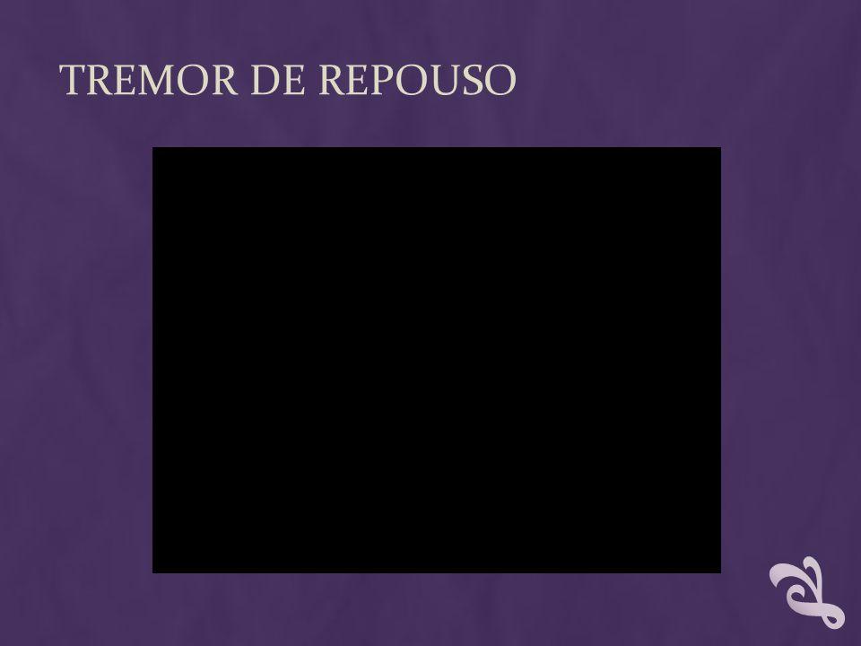 TREMOR DE REPOUSO